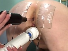 Speculum sex with violet wand.